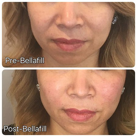Bellafill before and after
