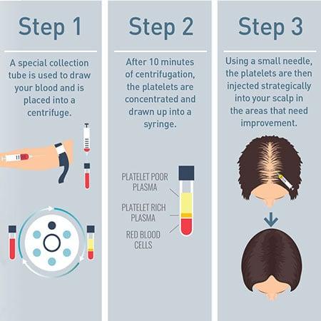 PRP Hair Restoration diagram