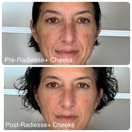 Radiesse Plus Before & After